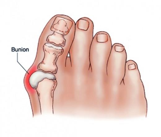 a nagy lábujj ízületi fájdalma