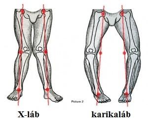 a térd artrózisával kell-e mozgatni ízületi fájdalmak receptjei