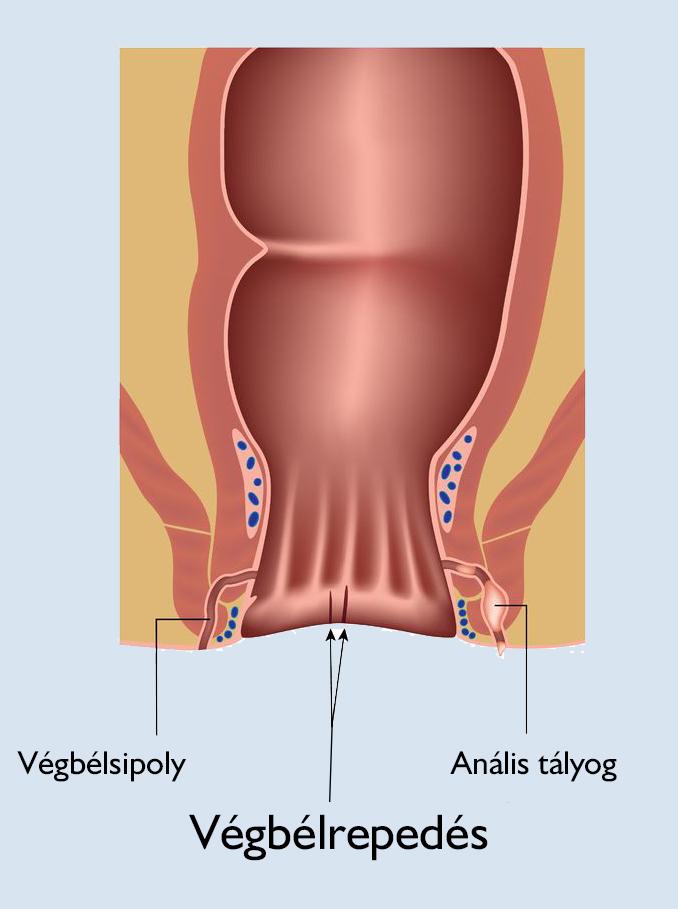 fájó orrízület kezelése kézízületi betegség csukló fájdalom