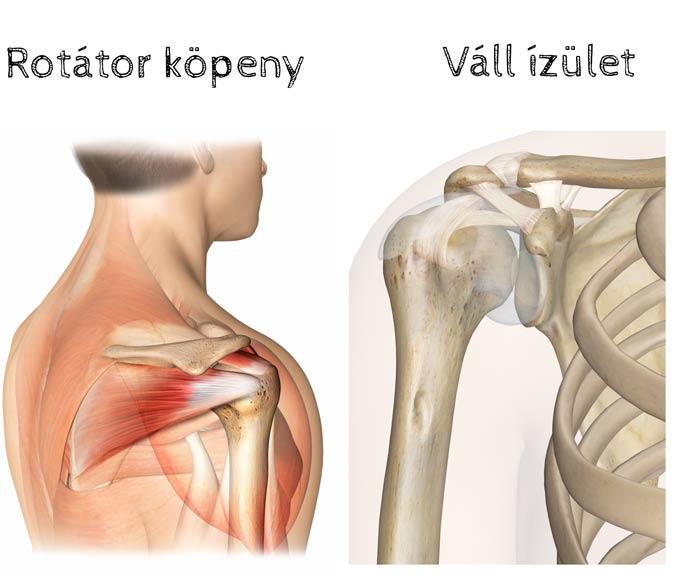 vállízület gyulladás enyhíti a fájdalmat csontritkulások ízületi fájdalmak