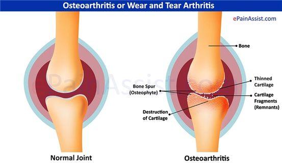fájdalom a láb és a borjú ízületében