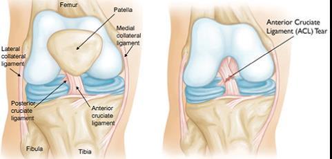 bursitis a térdízület kezelésében