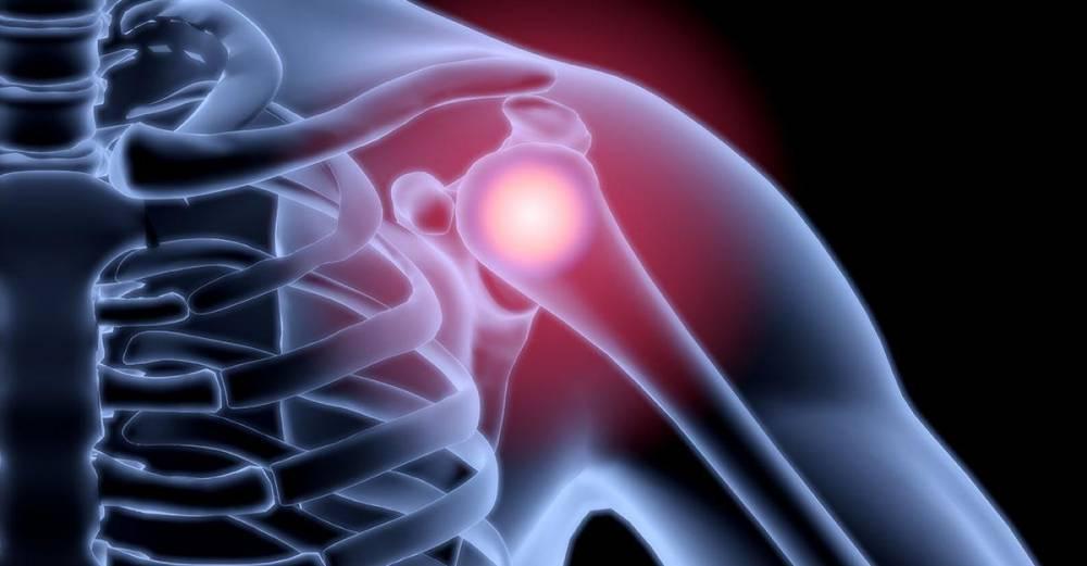 váll fájdalom kezelése, mint enyhítése a térd elülső kereszteződésének trauma