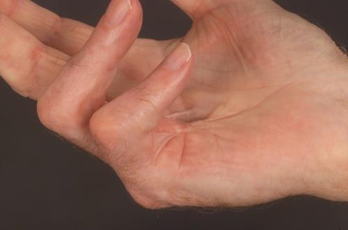 ízületi kezelés shabo-ban amelotex ízületi fájdalmak esetén