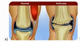 artrózis és kezelési módszerei