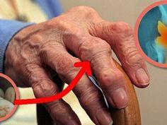 térdízületi polyarthritis kezelése cukor- és ízületi betegségek