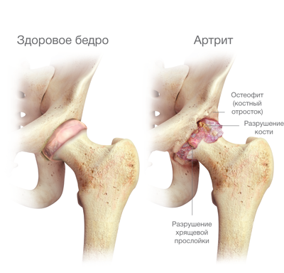 az artrózis coxarthrosis kezelésének módszerei