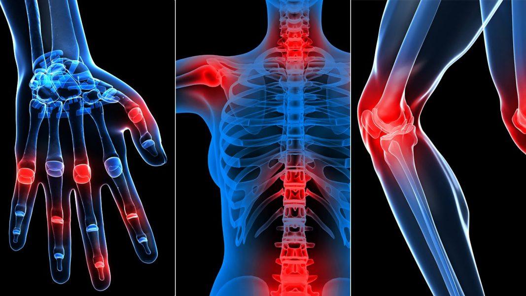 az összes fő ízület betegségei gua és ízületi fájdalmak