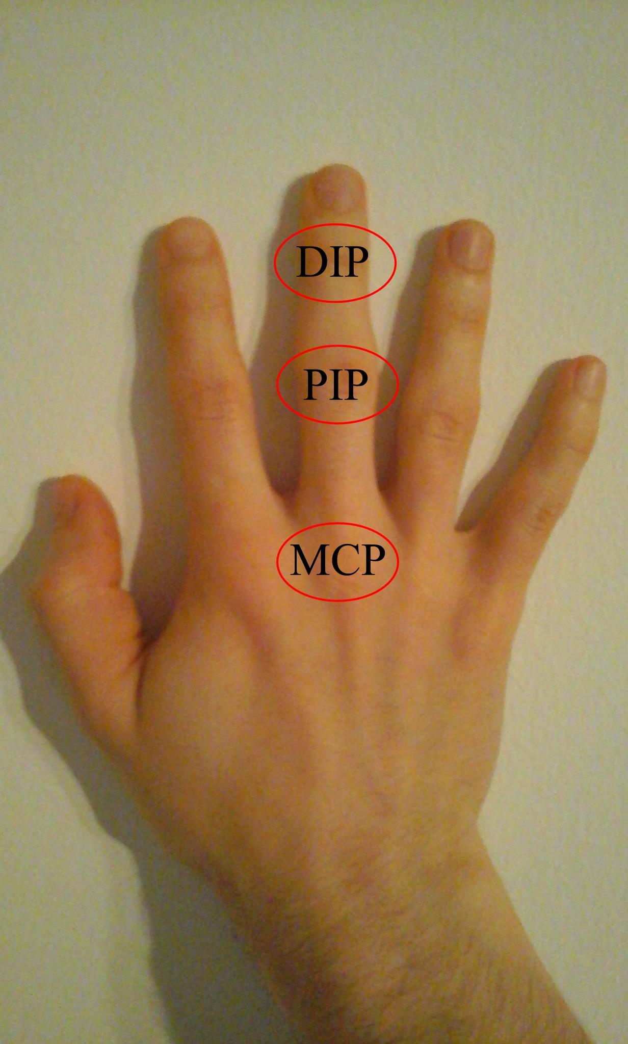 az ujjak ízületeinek ízületi gyulladása mint kezelni