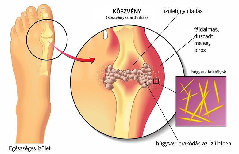 ízületi fájdalom a középső ujj kezelésénél