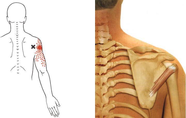 az ízületek fájnak a szorított ideget a kötőszövet megfelelő regenerálása