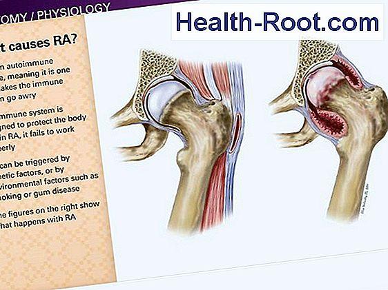 1 lábujj artritisz hogyan lehet enyhíteni az ízületek fájdalmát
