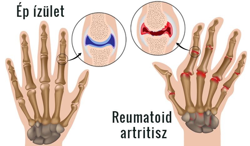 az ismeretlen ízületek artrózisa