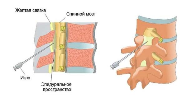 ízületi mozgás helyreállítása és fájdalomcsillapítás ízületi kezelés balakovóban