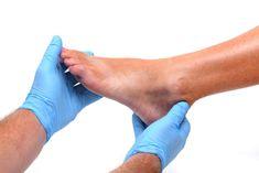 bokaízület sérülése