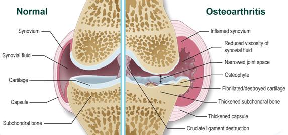 váll fájdalom rák ízületi fájdalom ujjak okozza