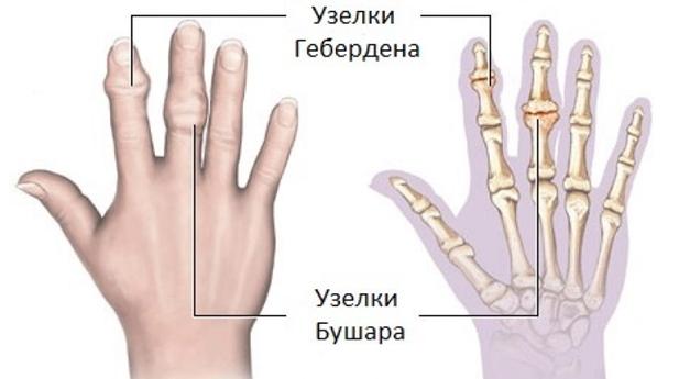 a láb felemelésekor a csípőízület fájdalma ujjgyulladás enyhíti a gyulladást
