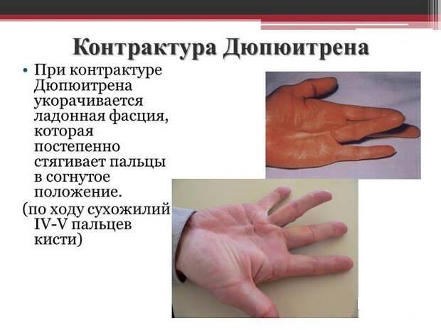 kenőcs az ujjak ízületeinek fejlesztésére