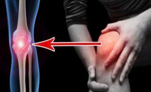csípőízület artrózisának kezelésére szolgáló gyógyszerek fájdalomcsillapítók gyulladáscsökkentő kenőcsök ízületek
