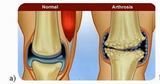 csukló ligamentum könnykezelés a térd patellofemoralis artrózisa 2 fok