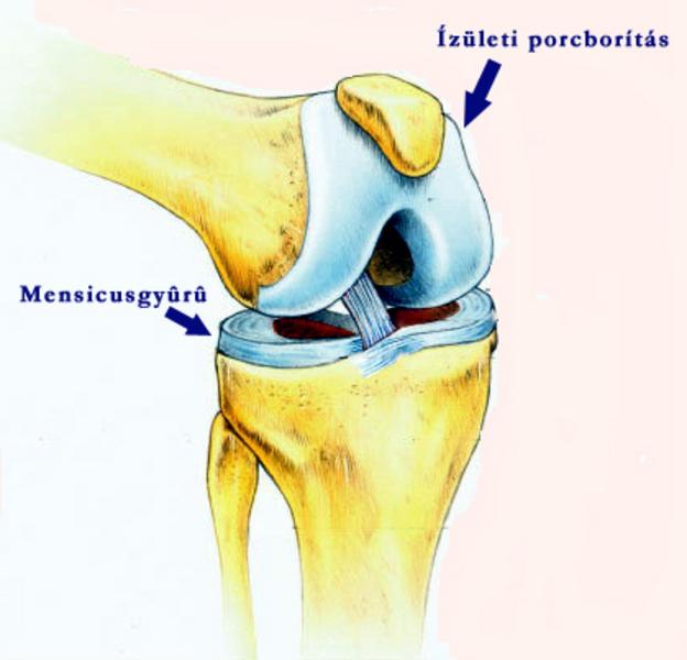 ízületi és porcbetegségek fájdalomcsillapító injekciók a kar ízületeiben fellépő fájdalomra