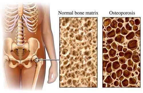 csontritkulás kezelési krémek hogyan és hogyan kell kezelni a lábízürt