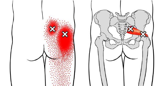 csípő típusú 2a kezelés gél ízületek és ízületek fájdalmához