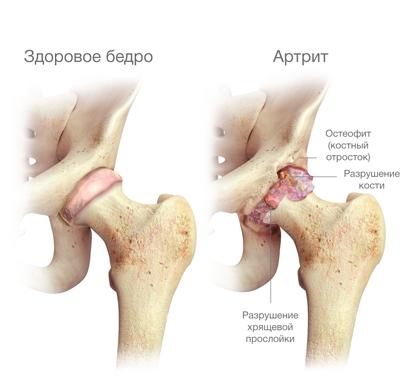 csípőízület coxarthrosis 3 fokos fájdalom