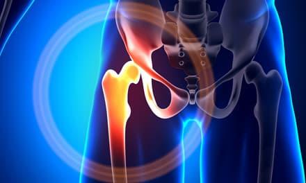 csípőízület fájdalma, hogyan kell kezelni a vállízület kezelésének könnycseppje