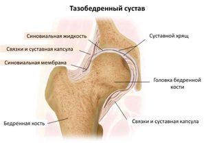 a térdízület 4. fokú ízületi gyulladása hogyan gyógyítható milyen fáj az ízület