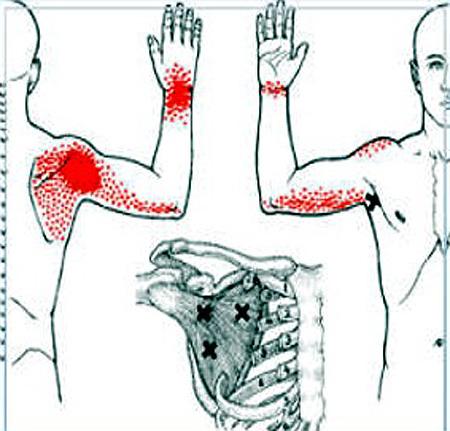 autoimmun ízületi betegség, rheumatoid arthritis mi a térdízület
