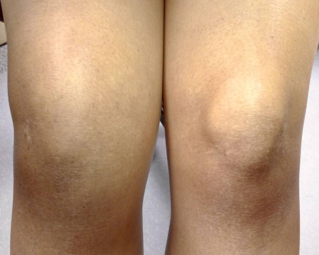 Becker cisztájának kezelése térd alatt - Osteoarthritis
