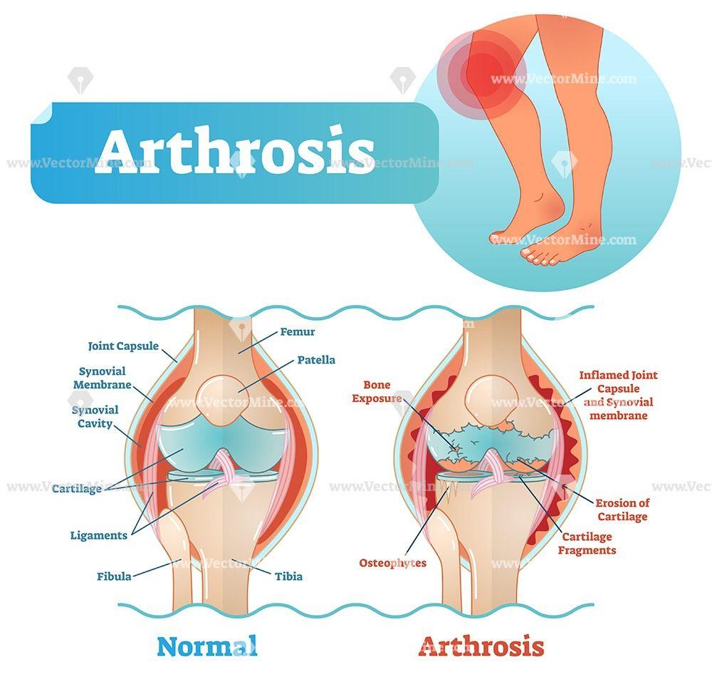 protein kezelés artrosis artrózis kezelés költségei