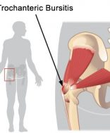 hogyan kell kezelni a csípőgyulladást