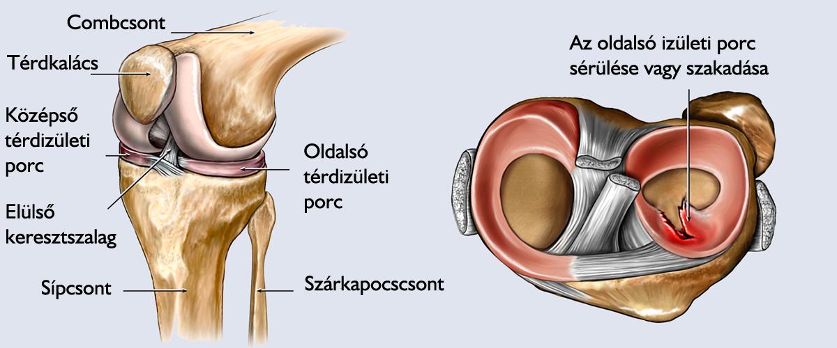 meniszkusz fájdalom meniszkusz könny milyen gyógyszereket kell használni a térdízület ízületi gyulladásában