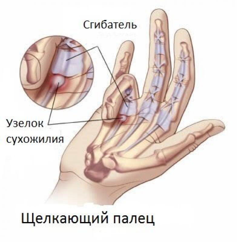 fájdalom a bal kéz csuklóízületében tehát hogyan lehet kezelni a beteg ízületeket