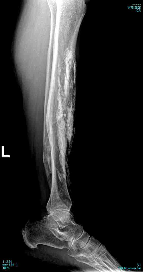 előadás a térdízület posztraumás artrózisa