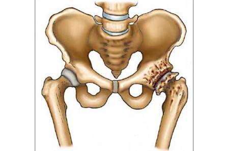 a coxarthrosis a csípőízület krónikus betegsége hogyan lehet kezelni a boka ízületi gyulladását