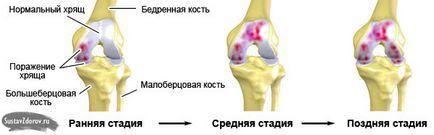 gonartrózis a térdízület 2 fokos kezelése testfájdalom ízületi fájdalom