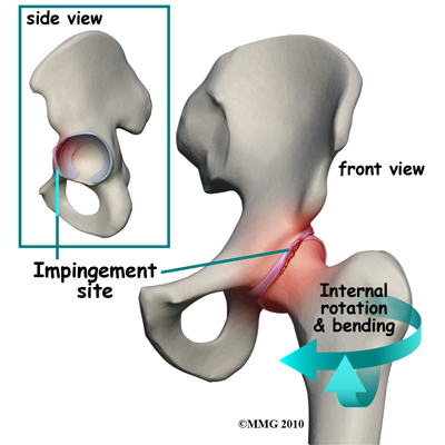 Csípőízületi fájdalom esetén mit kell tenni