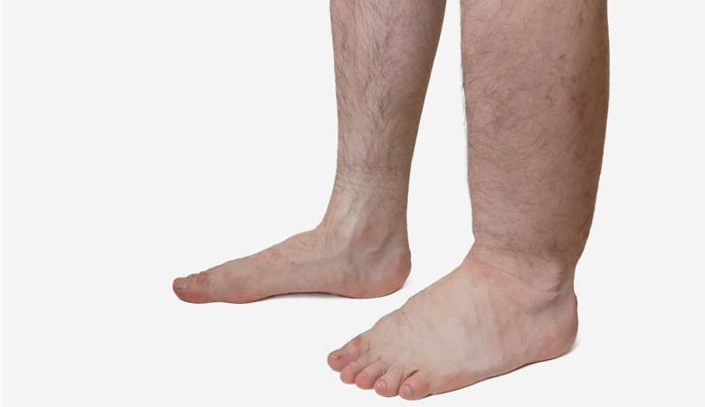 fájó ízületek a bal lábon