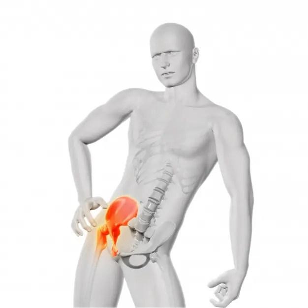 felnőtt csípő-diszlokációs kezelés