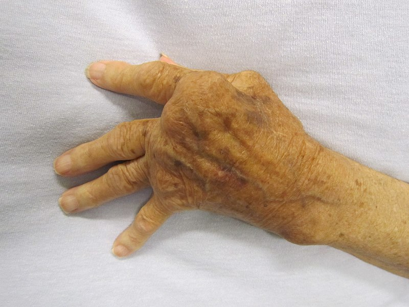 könyök vízkezelés artrózisos kezeléssel