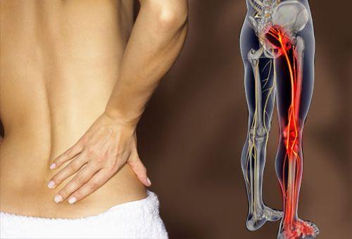 fibromyalgia ízületi fájdalom