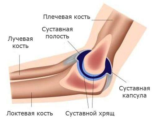 Könyökprotézis-műtét