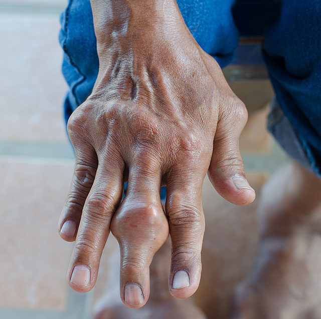 fájdalom a kéz kezén az ízületekben kámfor alkohol együttes kezelése