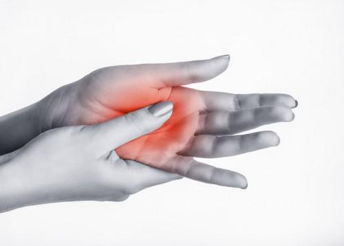 fájdalom a kéz ízületéből kötőszövet betegségek szűrése ellenanyagok