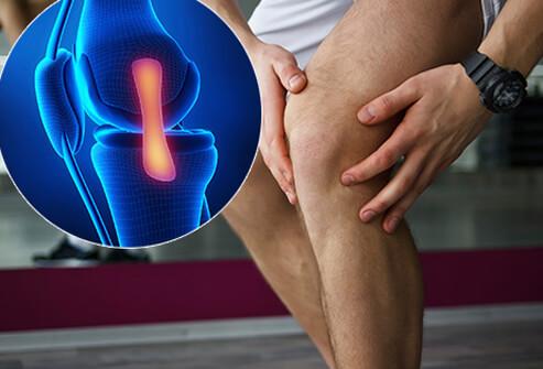 arthrosis kezelés arhangelszkben élesen beteg térdízületek
