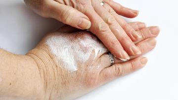 ízületi kezelés lyubertsy csípőzsír-kezelés osteoarthritis