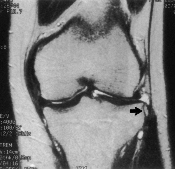 ízületi fájdalom, ha felhúzza artritisz artrózis kezelő gépek